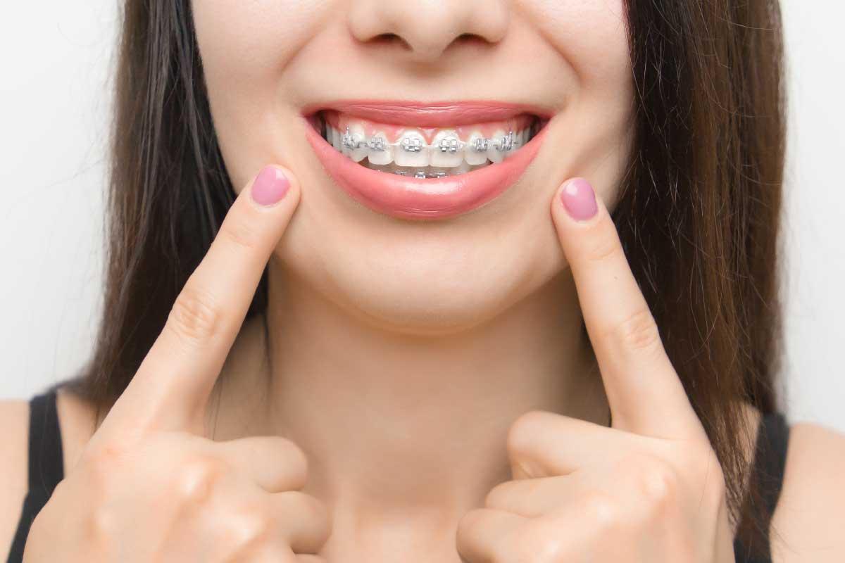 ortodontia são josé dos pinhais
